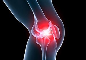 変形性膝関節症の痛みは炎症によるもの