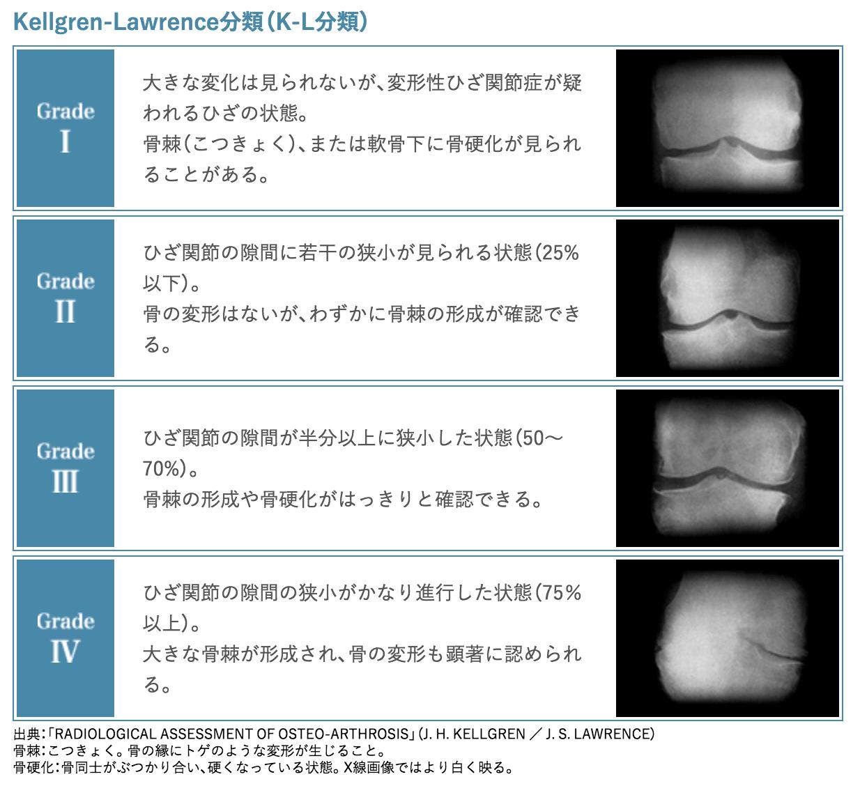 変形性膝関節症のグレード説明