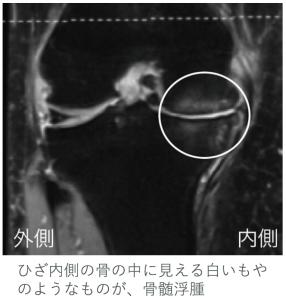 MRI検査で確認された骨髄浮腫