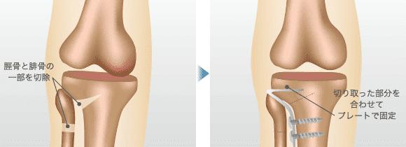 高位脛骨骨切り術(クローズド・ウェッジ法)