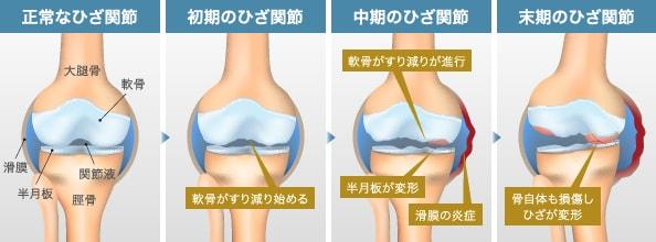 変形性膝関節症の進行度