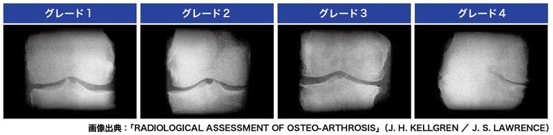 変形性膝関節症の進行度を示すグレード