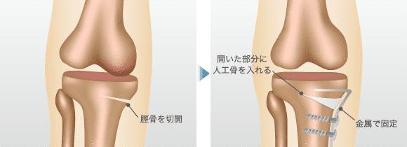高位脛骨骨切り術(オープン・ウェッジ法)