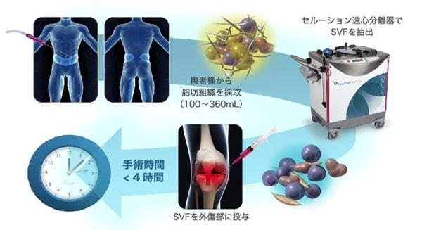 間質血管細胞群SVFによる治療