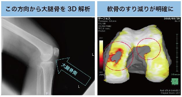 膝関節MRIの3D解析画像