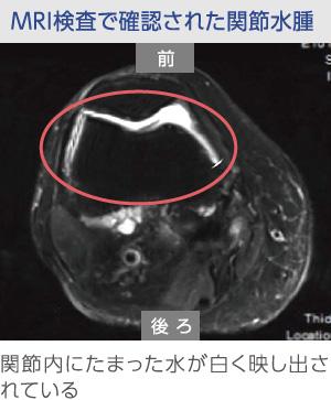 膝の関節水腫のMRI