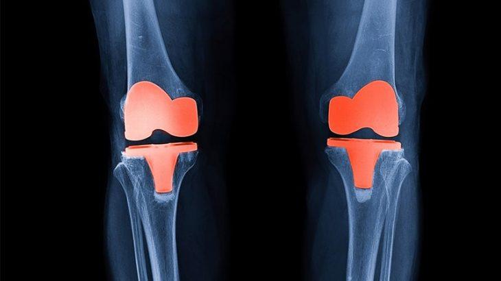 人工膝関節について