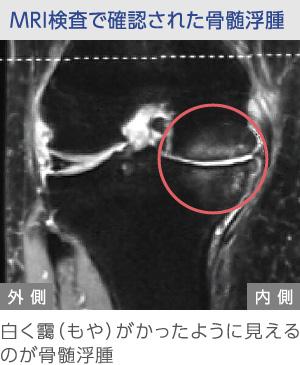 MRI検査で確認された関節浮腫