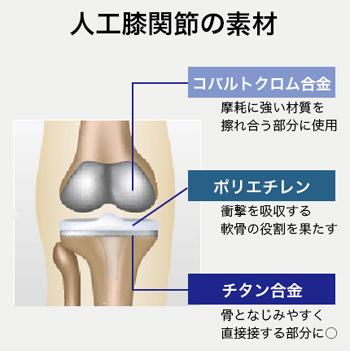 人工膝関節に用いられる素材