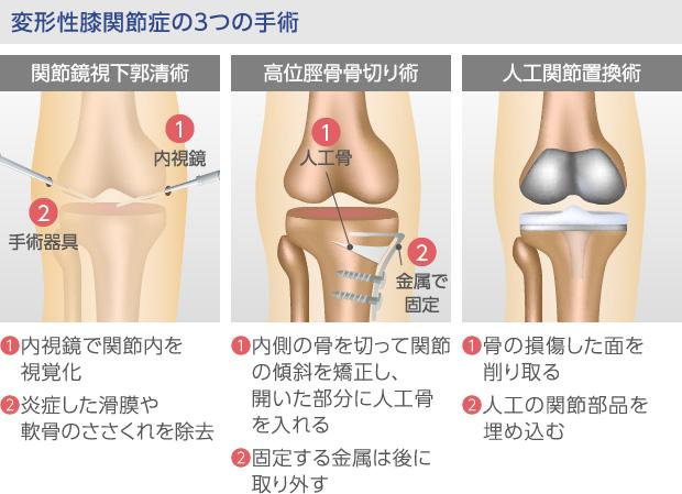 変形性膝関節症の3つの手術