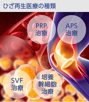 変形性膝関節症に対する再生医療の種類
