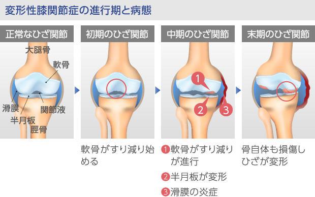 変形性膝関節症の病態変化