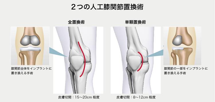 人工膝関節置換術の術式