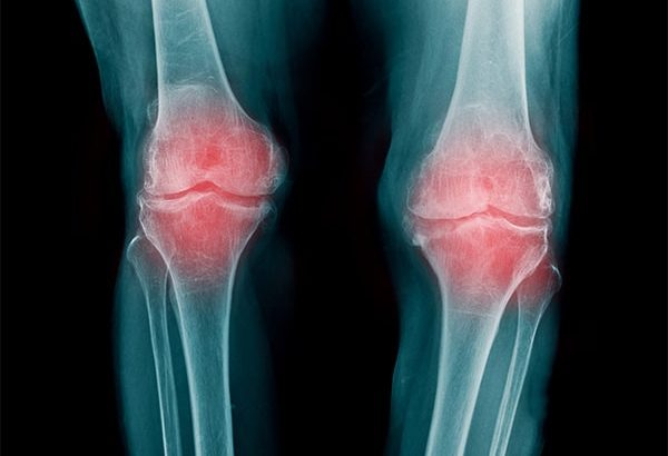 変形性膝関節症にはどんな症状がある?