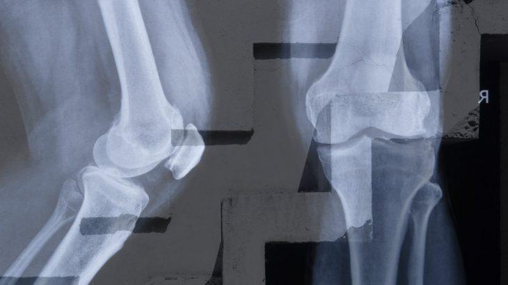変形性膝関節症の重症度を示すグレードと活用方法