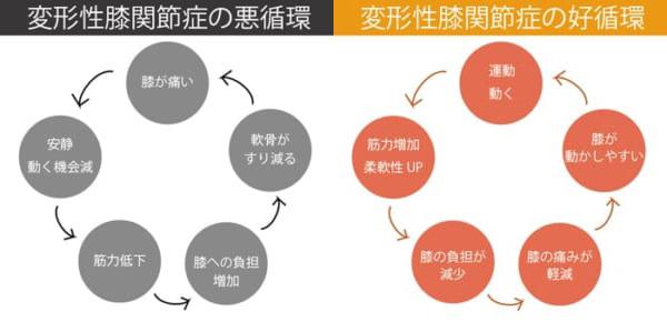 変形性膝関節症の悪循環と好循環とは