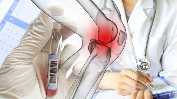 変形性膝関節症の痛みに柔軟に対応できる治療法