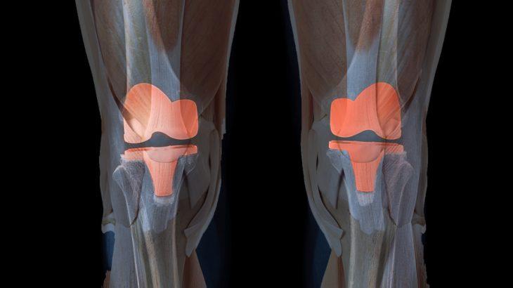 膝の人工関節置換術