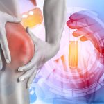 変形性膝関節症の最新治療が、日々進歩しています