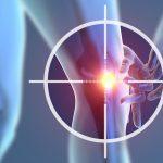 変形性膝関節症の原因究明が大切な理由とは?