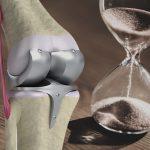 変形性膝関節症の手術を検討中の方に知ってほしいこと