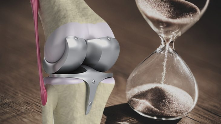 変形性膝関節症の手術療法について