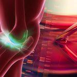 PRP療法が膝の痛みに果たす役割とは?