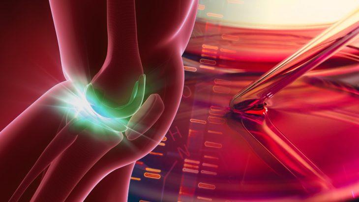 膝へのPRP治療にはどんな効果があるのか