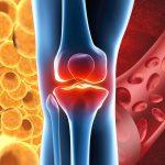 【自分の脂肪と血液で治療】変形性膝関節症の再生医療の効果と安全性