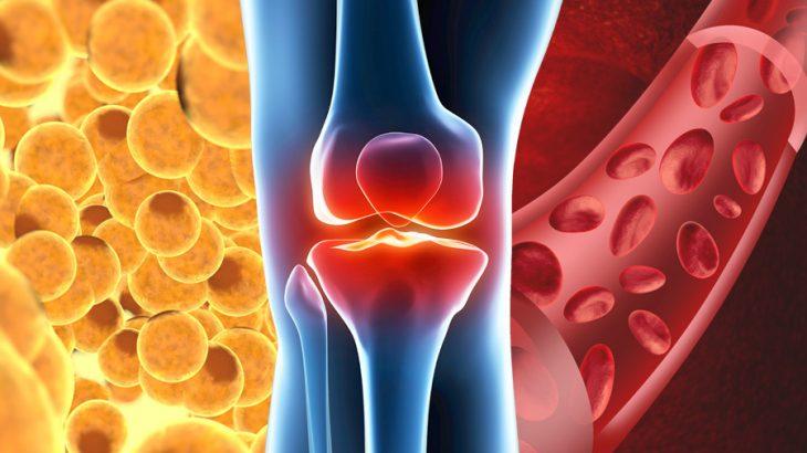 変形性膝関節症に対する再生医療