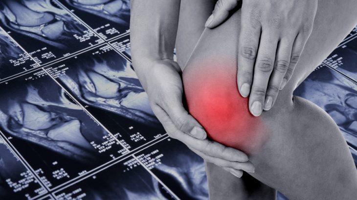 変形性膝関節症の症状とは?