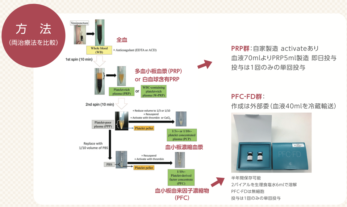 PRP治療とPRP-FD注射の工程の違い
