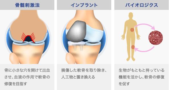 軟骨の治療法は大きく三つある