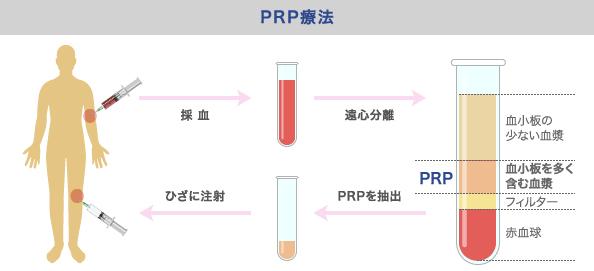 自己血液を利用する「PRP療法」