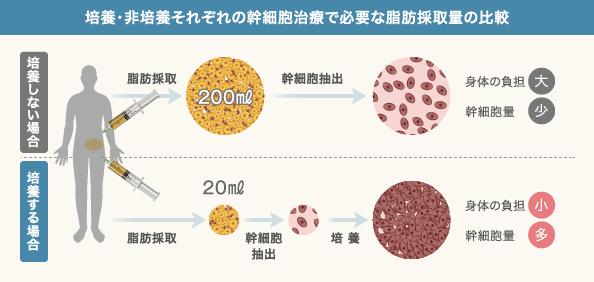 膝の幹細胞治療の流れ