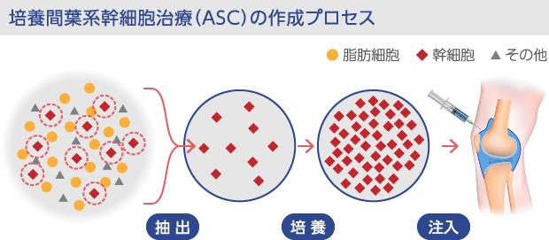 培養間葉系幹細胞の注入プロセス