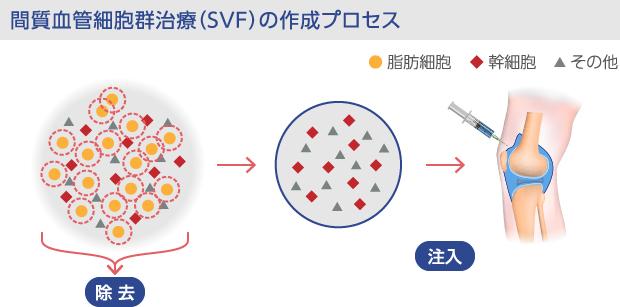間質血管細胞群(SVF)の注入プロセス