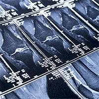 より正確に、ひざの状態を把握できる