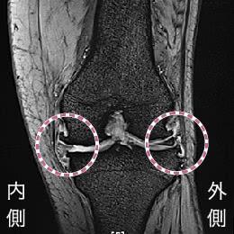 骨棘や半月板の変性、関節水腫などが認めらえる変形性膝関節症のMRI画像