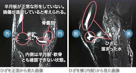 80代前半・男性/変形性膝関節症(末期)