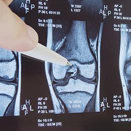 膝関節のMRI画像をボールペンで指しながら説明